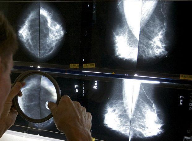 breast cancer screening_162890