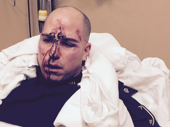 361517-officer-frost-injuries-518ee_181908