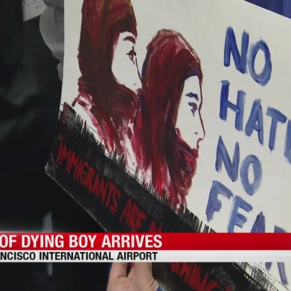 Yemeni mother of dying 2-year-old arrives at SFO