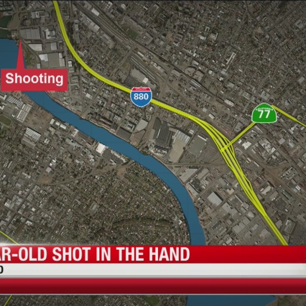 7-year-old shot in hand